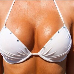 mamoplastia-redutora (3)